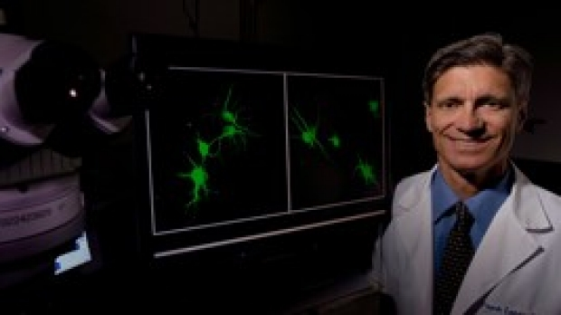 Study identifies small molecules mimicking key brain growth factor