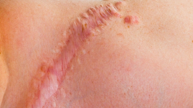 Cell type responsible for scarring, skin-cancer growth identified