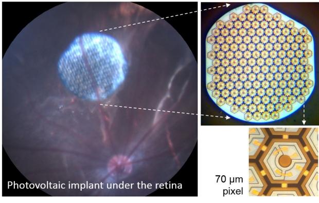 Diagram of retinal implant