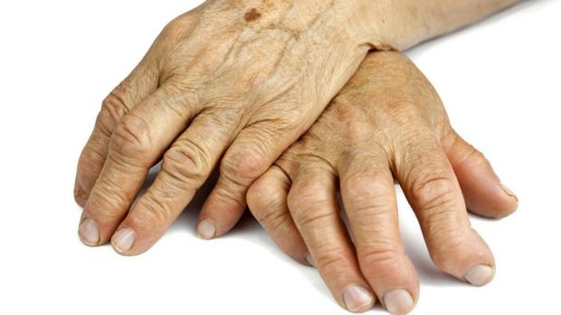 Phase-3 trial of drug for refractory rheumatoid arthritis successful