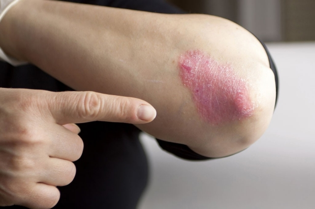 A person pointing to psoriasis on the elbow