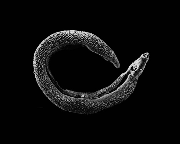 Schistosoma worm