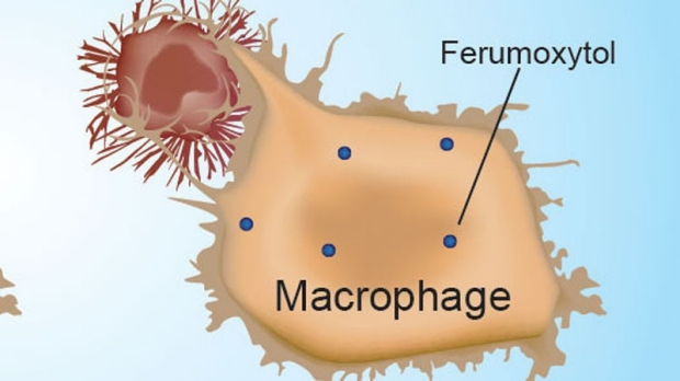 Iron nanoparticles make immune cells attack cancer