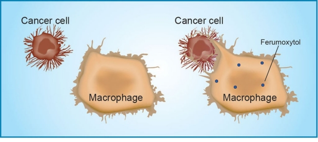 Diagram showing how iron particles can trigger an immune attack on cancer cells