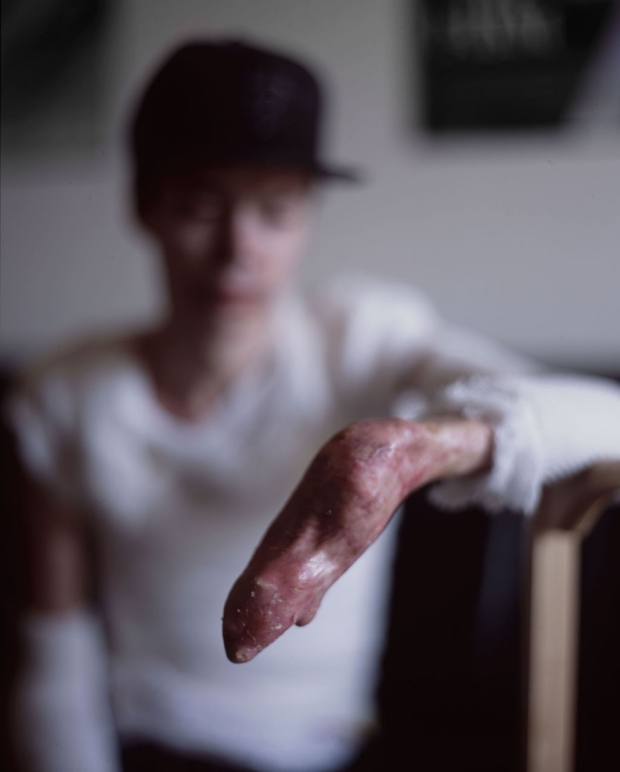 Hand of an epidermolysis bullosa patient with a small skin graft