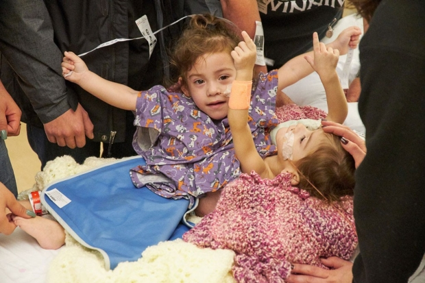 Conjoined twins before their separation surgery