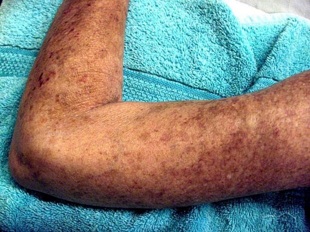 Arm with lesions caused by scleroderma