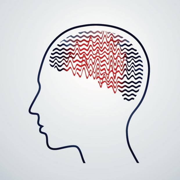 Illustration of a brain undergoing an epileptic seizure