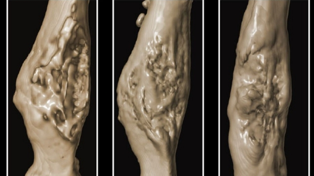 Diabetes impairs activity of bone stem cells in mice, inhibits fracture repair
