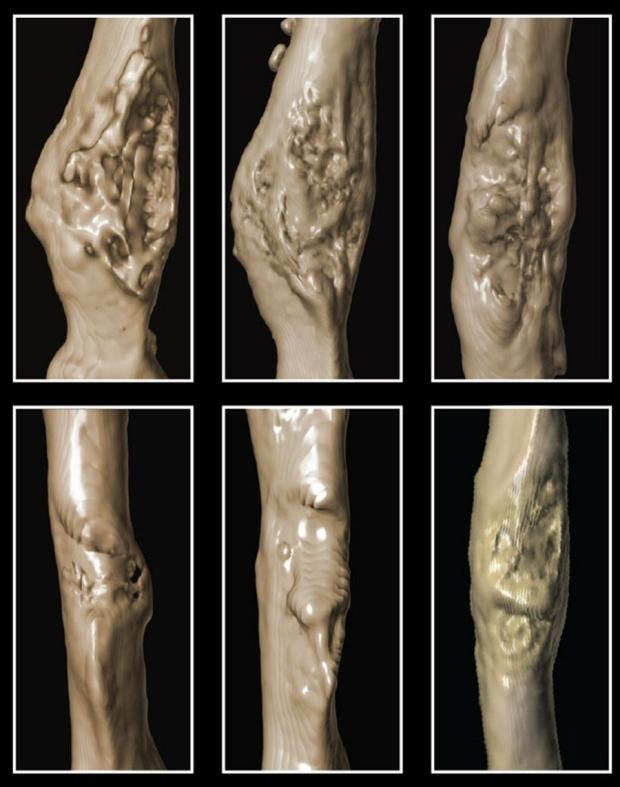 Six separate images of damaged bones