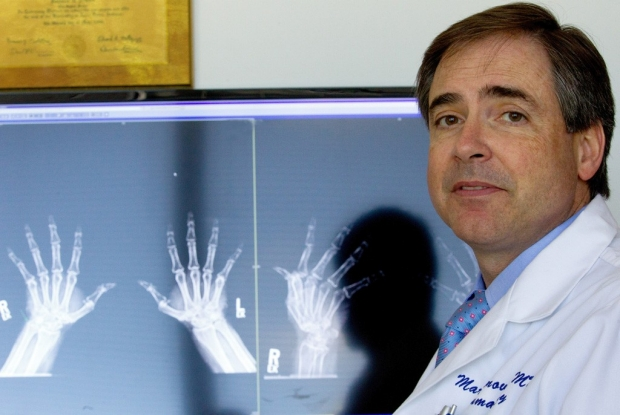 Male doctor sitting in front of X-rays of arthritic hands