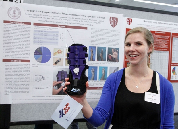 Woman standing in front of a research poster and holding up a hand splint for burn victims