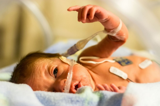 Premature infant with a tube in its nose