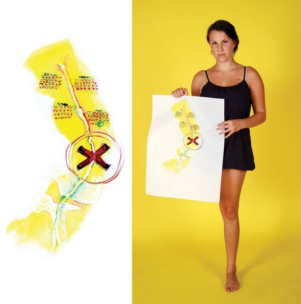 Woman holding a painting depicting the amputation of her leg