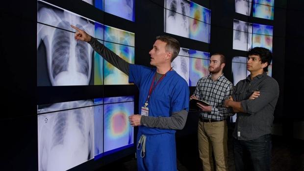 Algorithm better at diagnosing pneumonia than radiologists