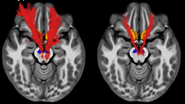 Key social reward circuit in the brain impaired in kids with autism