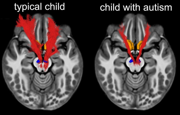 MRI brain scans of a child with autism and one without autism