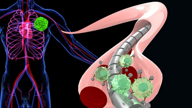 How a magnetized wire attracts tumor cells
