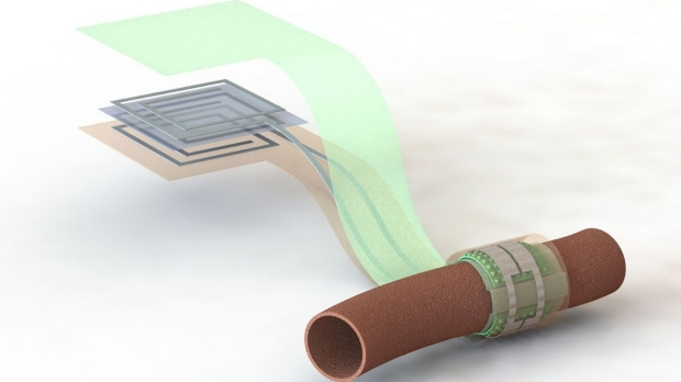 Researchers create wireless blood flow sensor