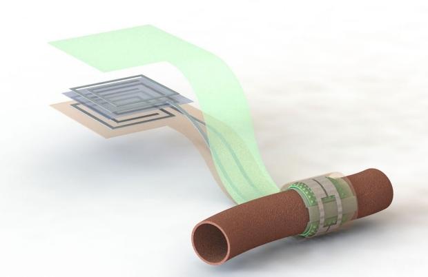 Illustration of blood flow sensor