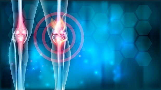 Illustration of knee affected by osteoarthritis