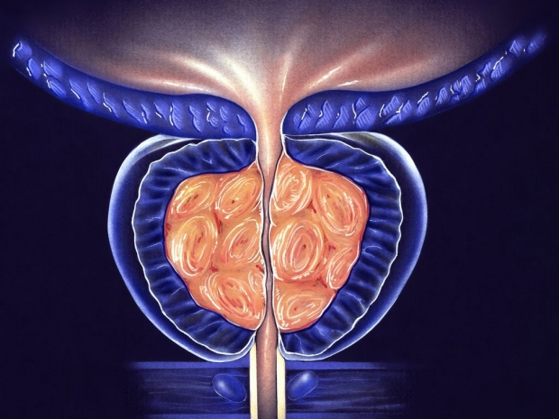 Illustration of an enlarged prostate