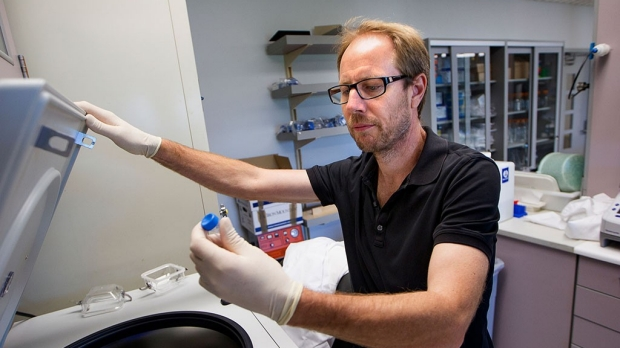 Stanford scientists reliably predict people's age by measuring proteins in blood