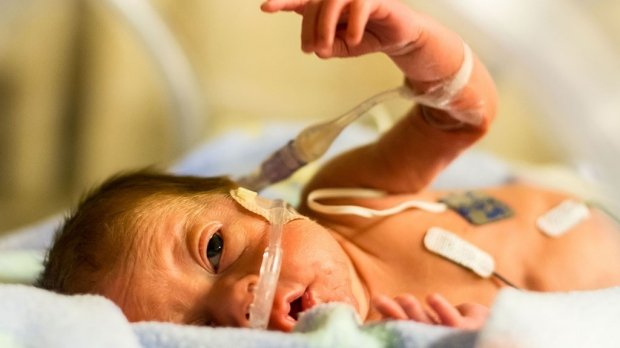 California preemies going home healthier