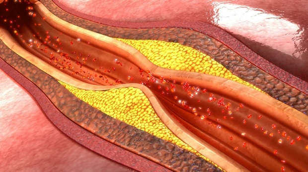 Unregulated artery cell growth may drive atherosclerosis