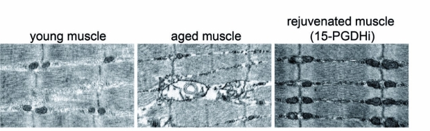 young, old and rejuvenated mouse muscle