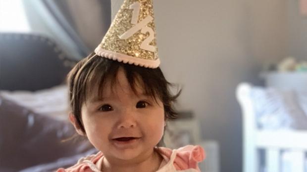 Newborn avoids jaw surgery with retainer