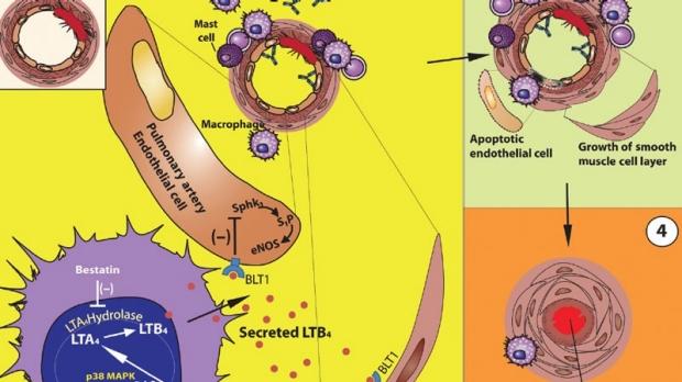 Pulmoray Hypertension image