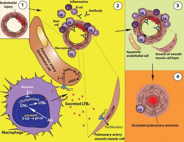 Pulmonary Hypertension image