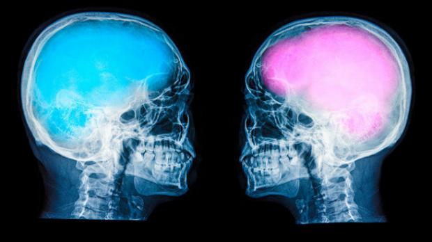 City Visions: Male brain, female brain