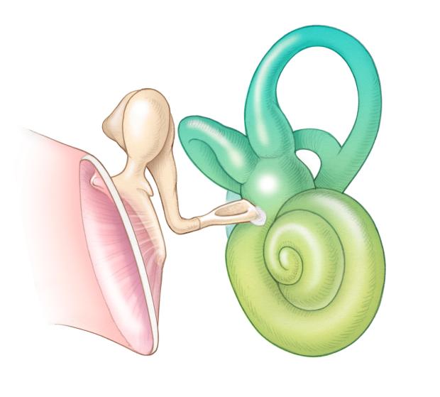 otosclerosis