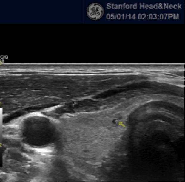 Ultrasonography scan