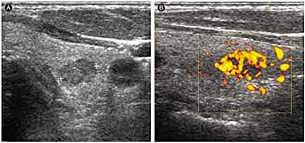 Ultrasound Hypervascular
