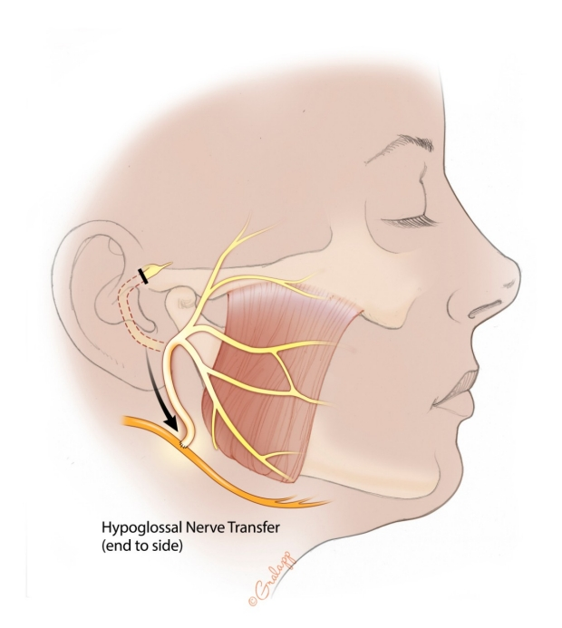 06b-Hypoglossal