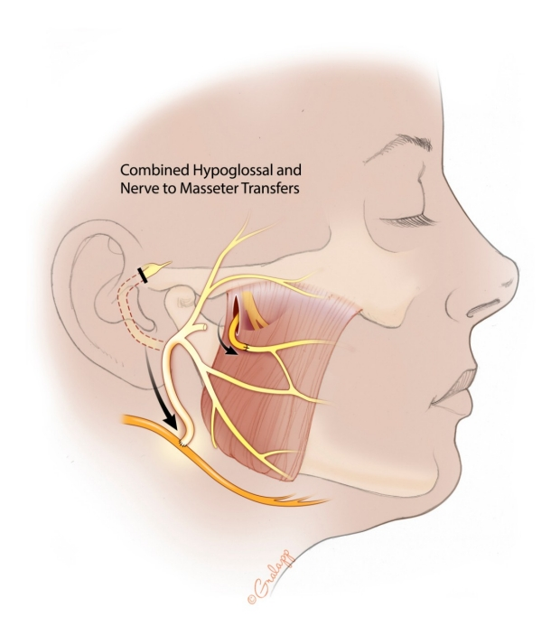 06c-combined-Hypoglossal