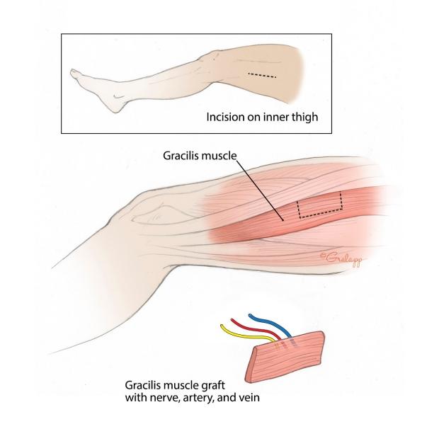 04a-Gracilis-graft