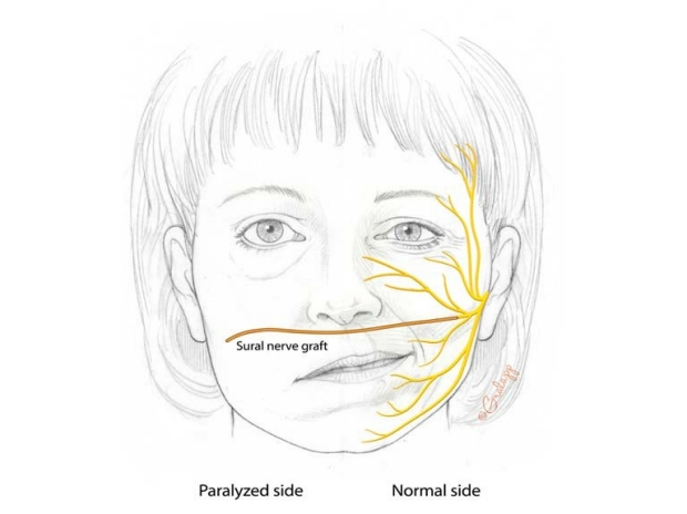 Paralyzed Face with CFN Graft