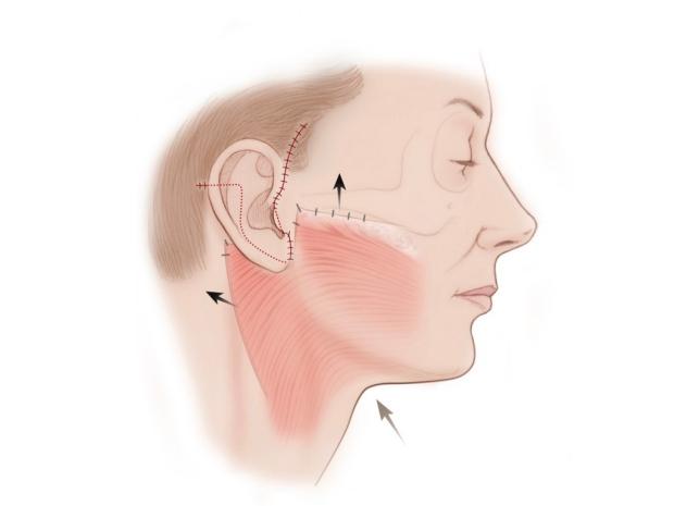facelift illustration