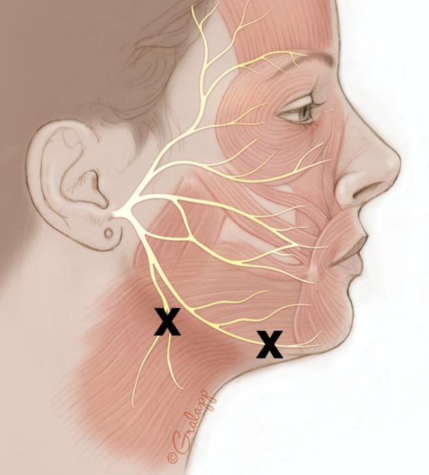 Selective Neurectomy
