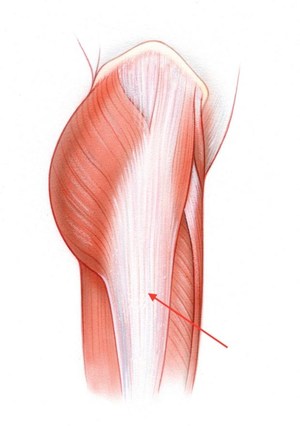 Illustration of fascia lata