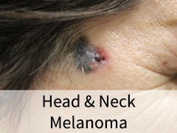 Head and Neck Melanoma