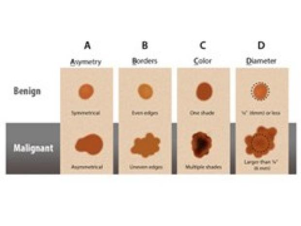 Skin Cancer illustration