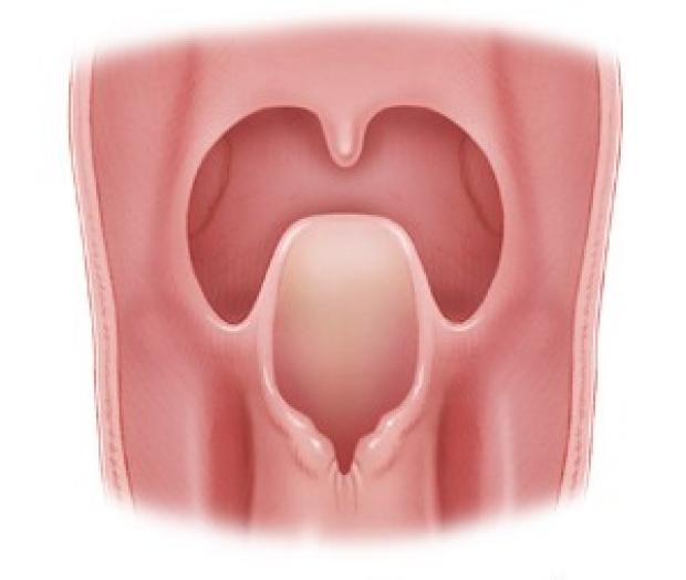 illustration of suppraglottic larynx