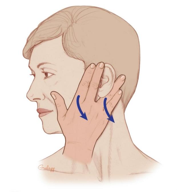 An illustration showing lymphedema massage