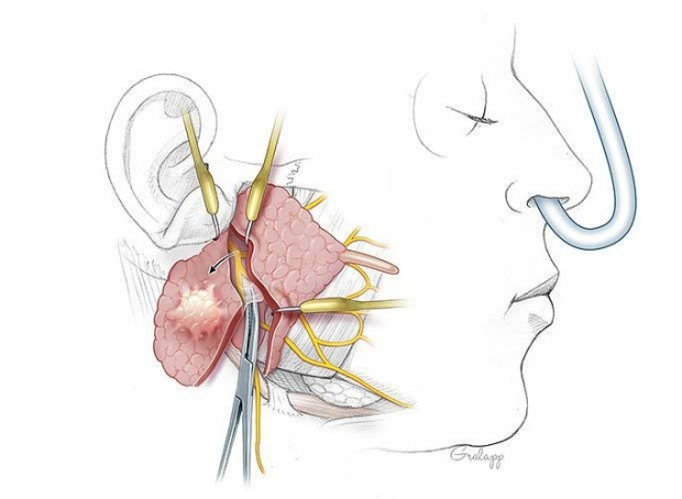 retrogade parotidectomy