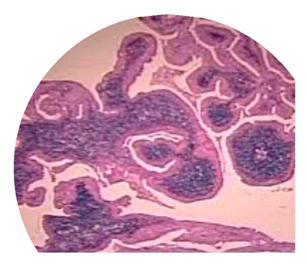 Warthin's Tumor Image